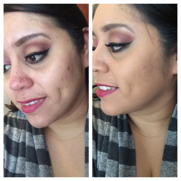 Look at that coverage!  One simple layer, no primer, no concealer!